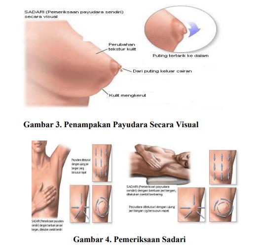 pemeriksaan-payudara-sendiri-atau-SADARI